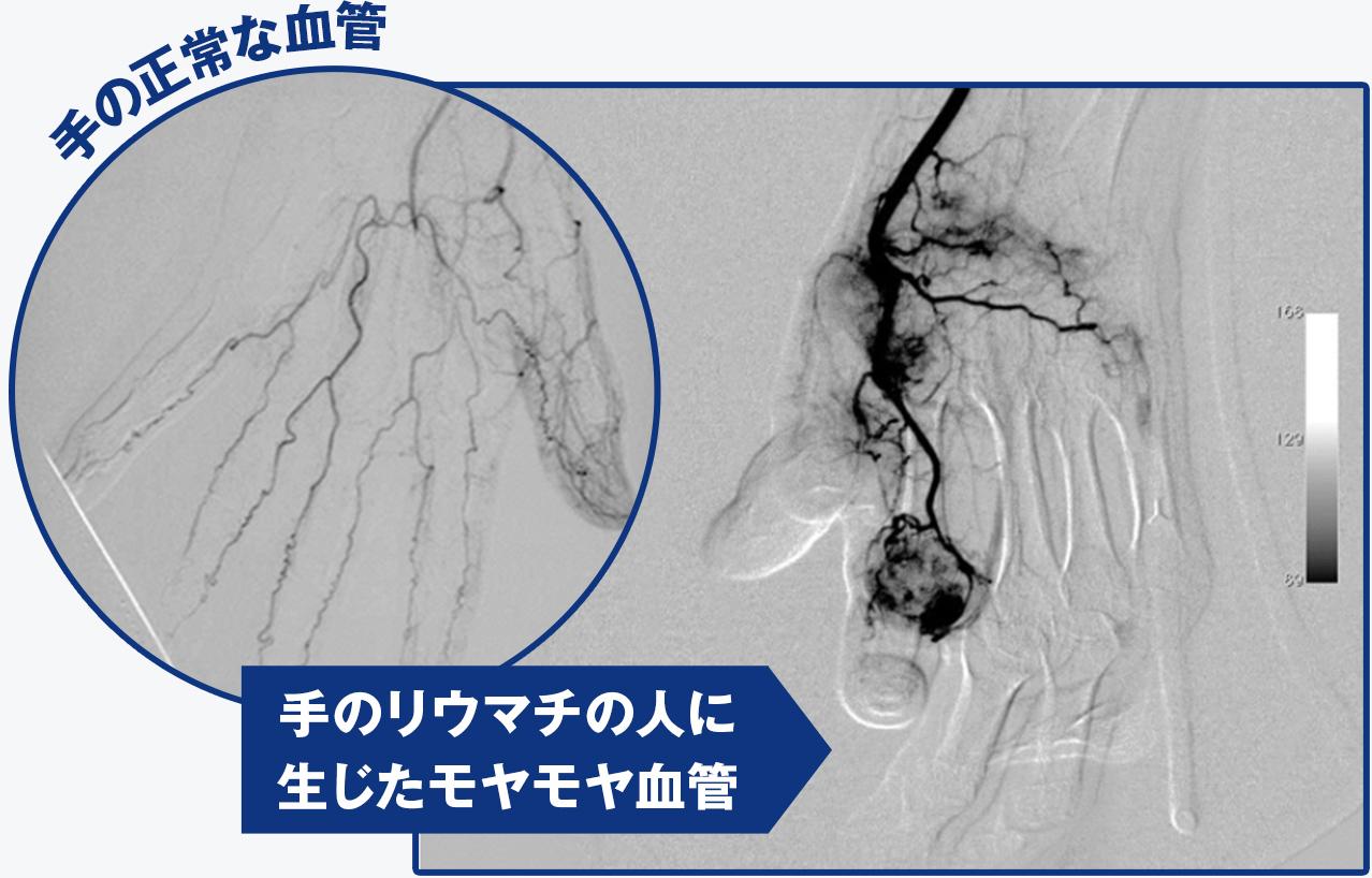 血管 モヤモヤ