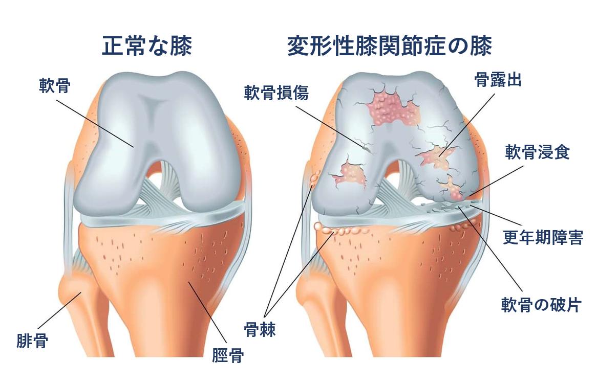 障害 性 脛骨 痛 有 外