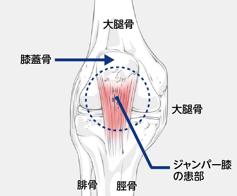 の 痛み ひざ