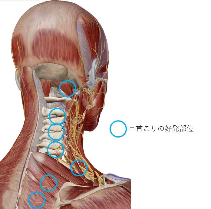 首こり(首コリ)| 慢性痛治療の専門医による痛みと身体のQ&A