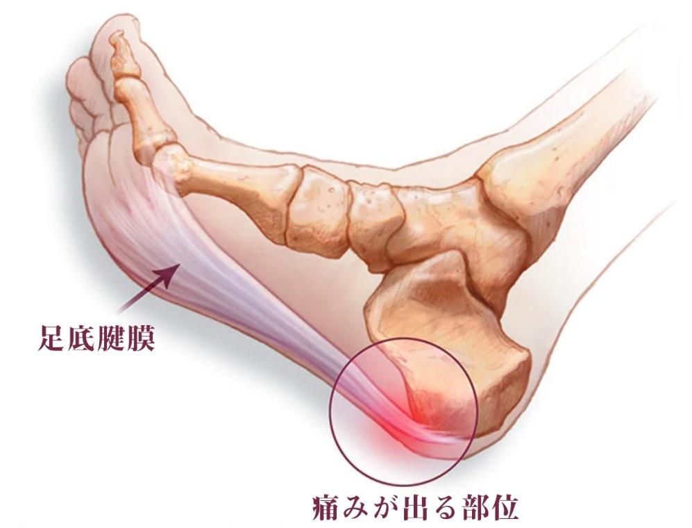 が 起き たら 痛い 足